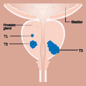 A prosztatitis házi gyertyái Sobero a prostatitis válás
